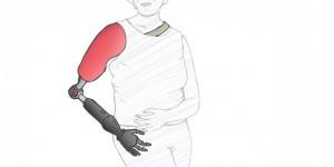 Schouder-, elleboog-, handprothesen