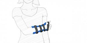 Pols-, Arm/hand-, vingerorthese